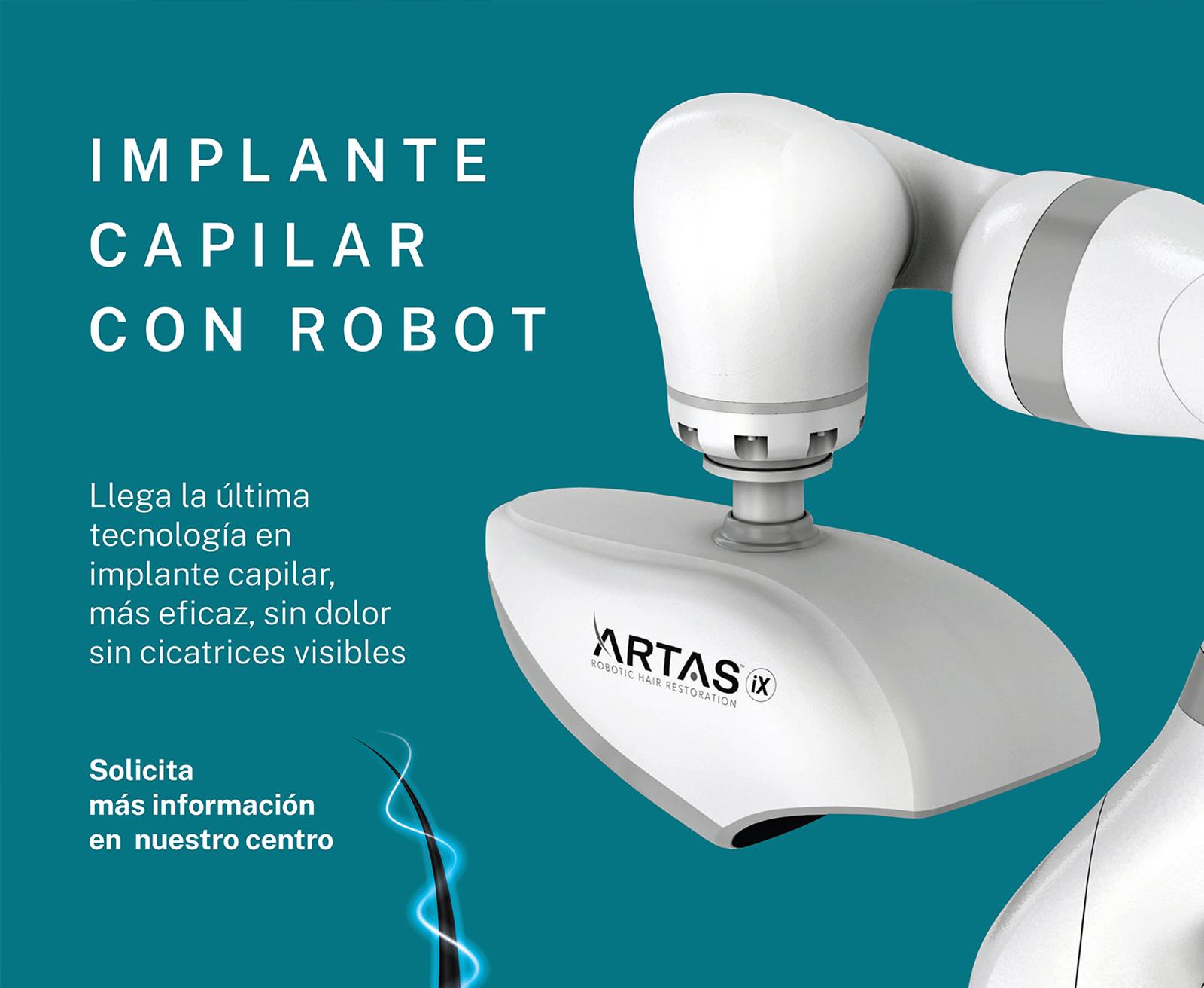 Implante capilar con robot ARTAS